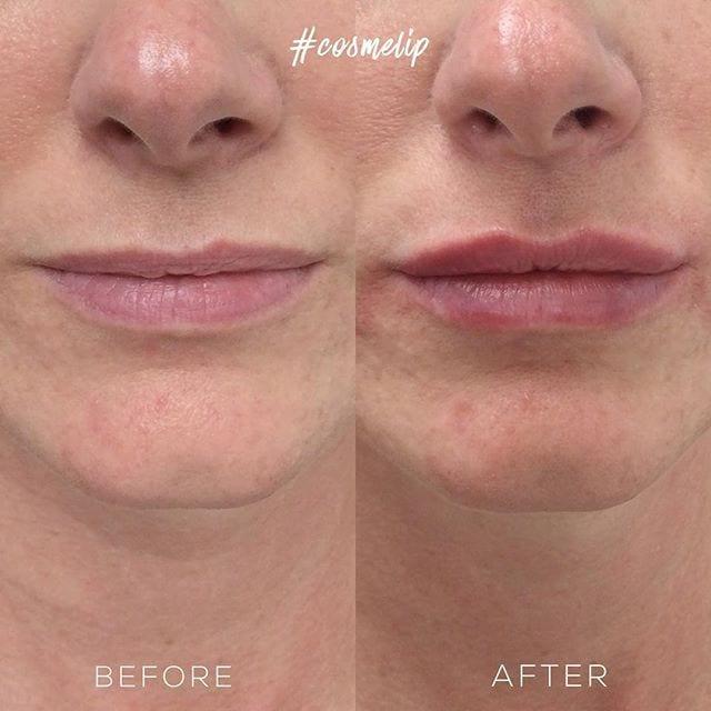non-surgical-lip-augmentation