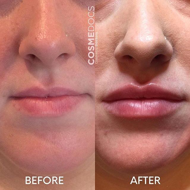 non-surgical-lip-line
