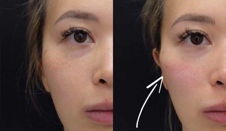 cheekbone-enhancement-with-dermal-fillers-lg