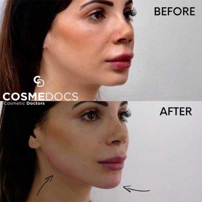 lower-face-enhancement-using-dermal-fillers-lg