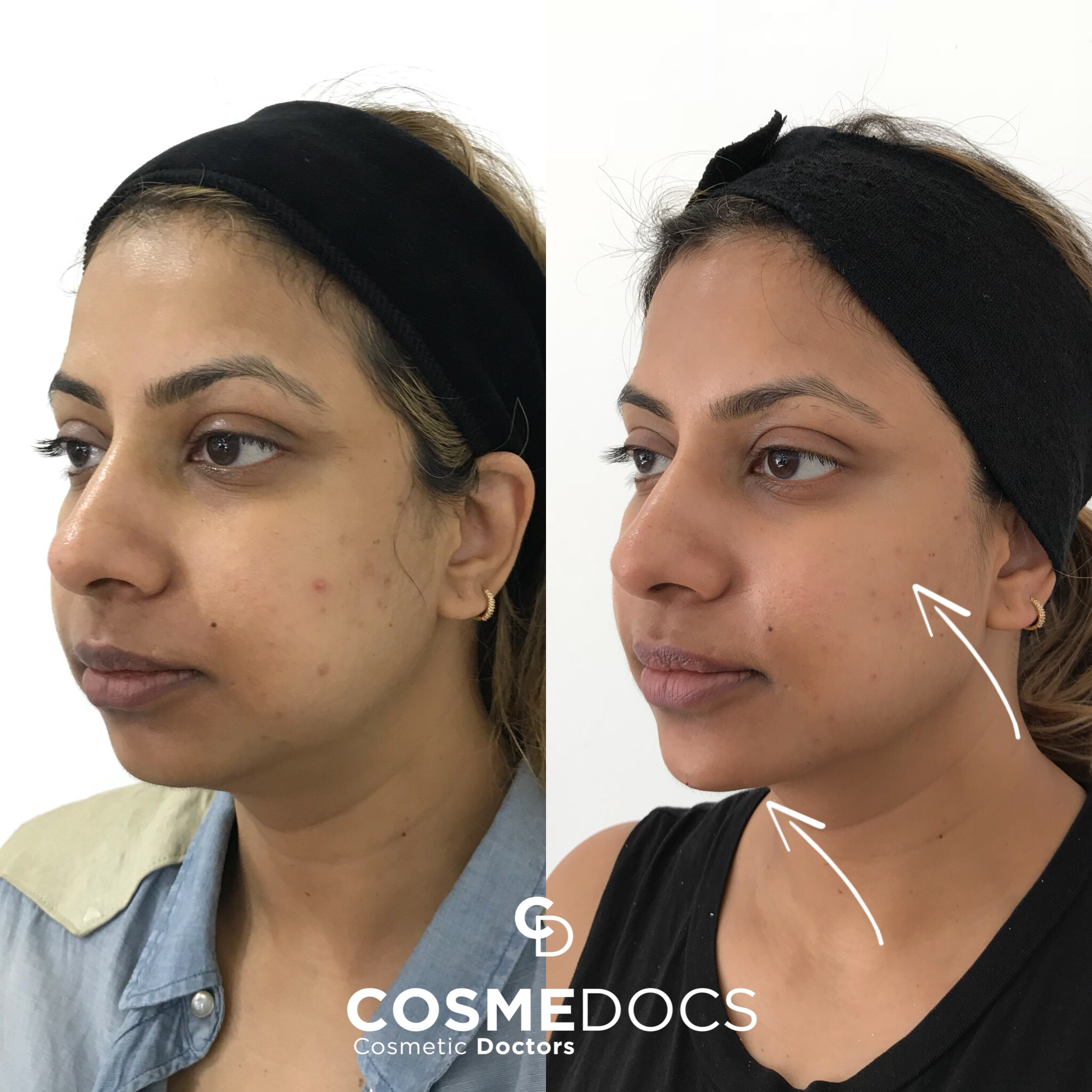 How to reverse Jowls