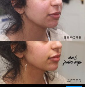1ml jaw line filler before and after