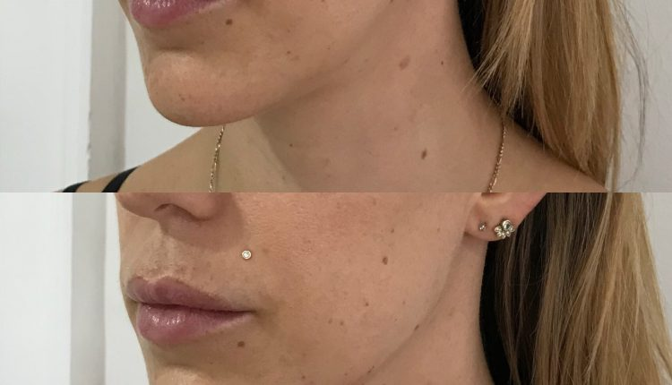 Jowl improvement after Filler Before And After