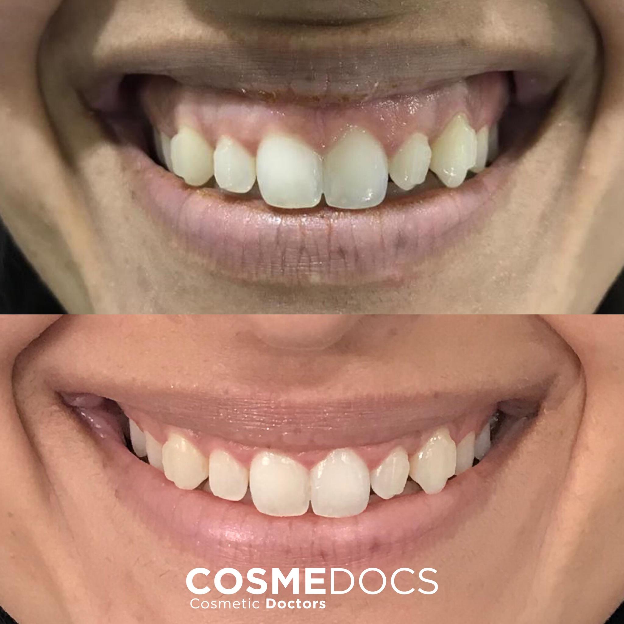 botox treatment for gummy smile