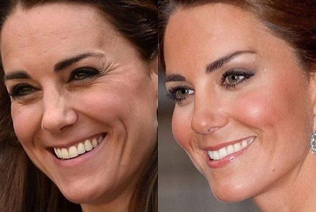 Kate Middleton Baby Botox