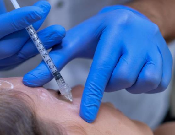 Micro Botox Injection Technique