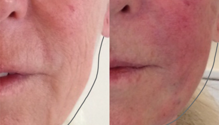 Non-Surgical Face Lift | Jawline Filler & PDO Threads