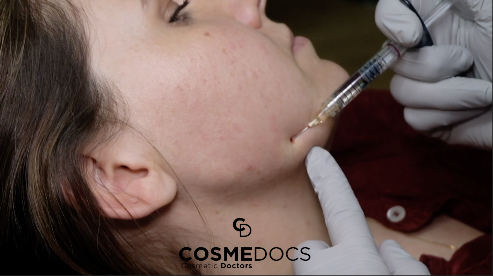 Jaw Line Filler Injections