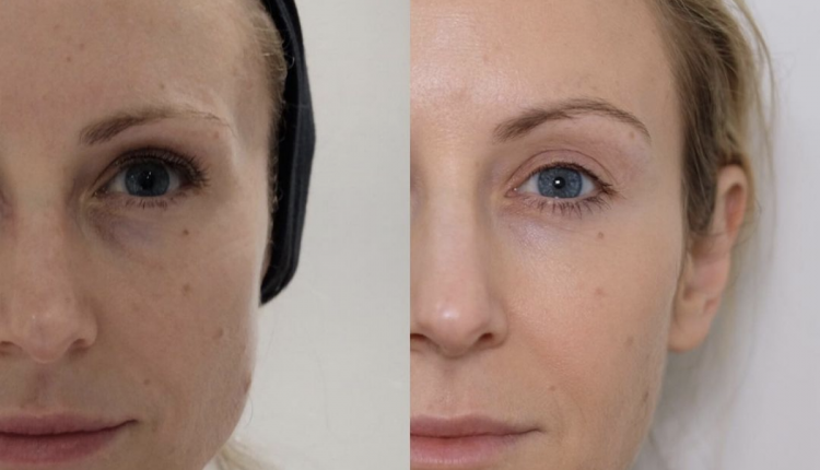 Botox Brow Lift Before And After