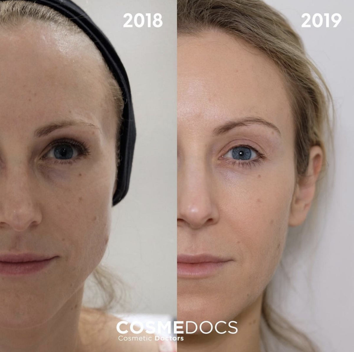 botox brow lift over the years with wrinkle treatment