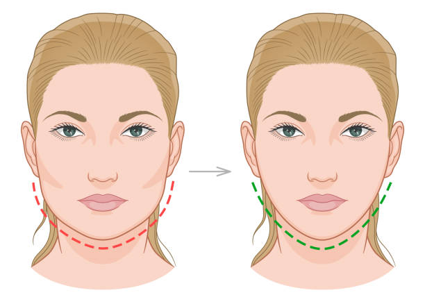 What To Expect In A Jawline Filler Procedure