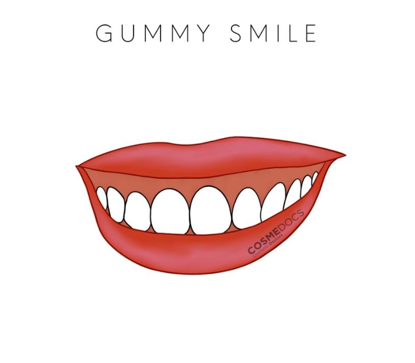 gummy smile illustration