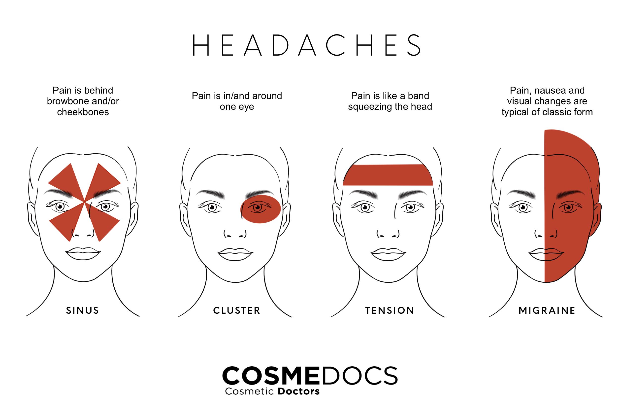 type of Headaches illustration