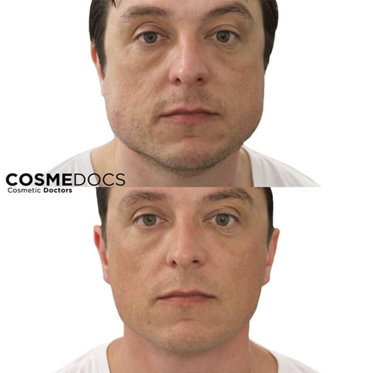 masseter botox injection before and after
