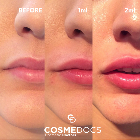 1 ml lip filler before and after
