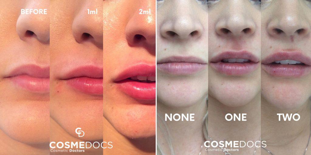 2ml lip fillers