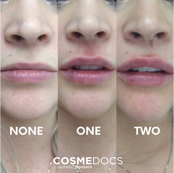 2ml lip fillers before and after