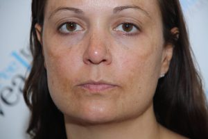 Treatment at our hyperpigmentation clinic