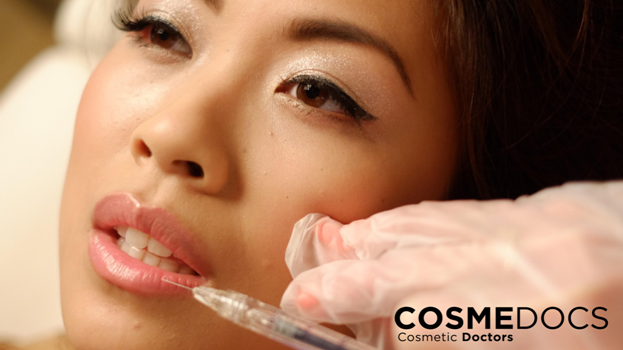 Non Surgical Lip enhancement treatment