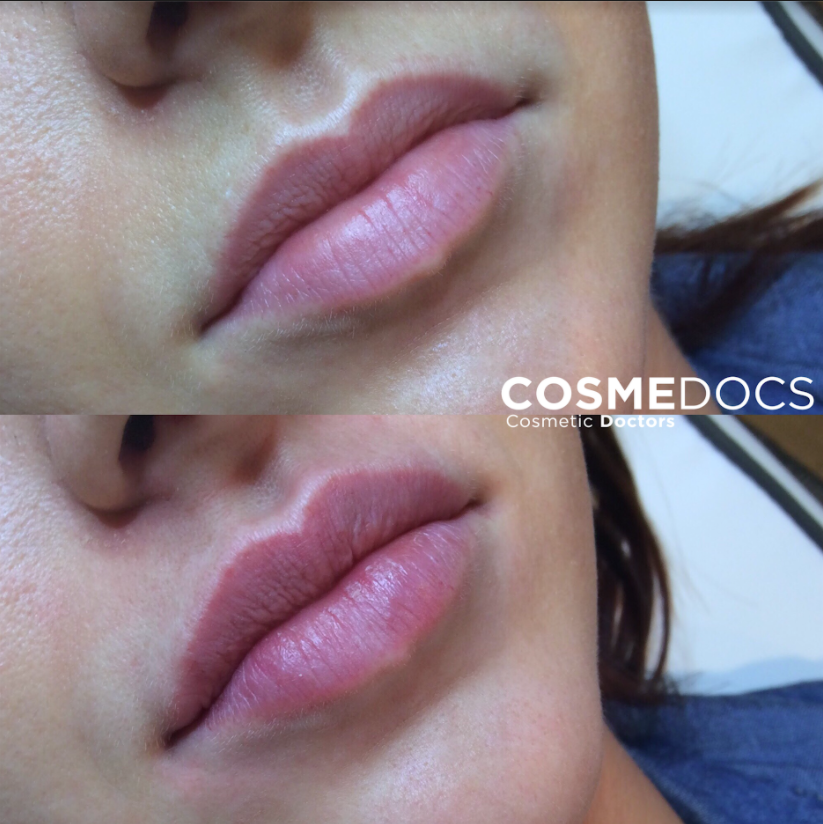 Pouty Lips with Lip fillers