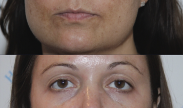 The Hyperpigmentation Clinic Before And After