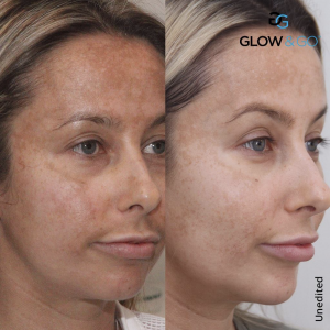 The hyperpigmenation clinic for melasma by cosmedocs