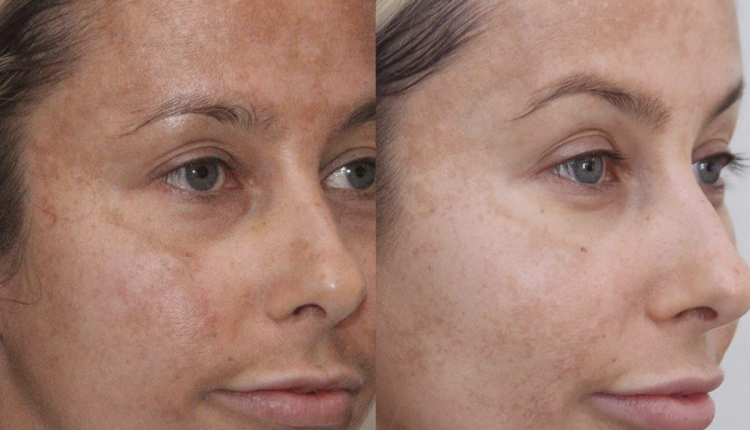 Hyperpigmentation clinic treatment results