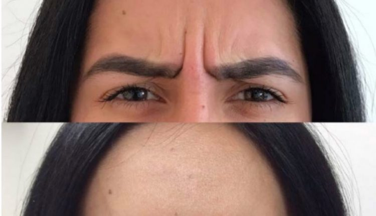 Frown Botox Before And After