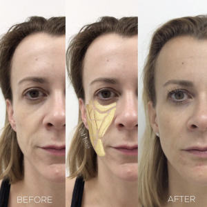 dermal fillers treatment restoration facial volume before and after
