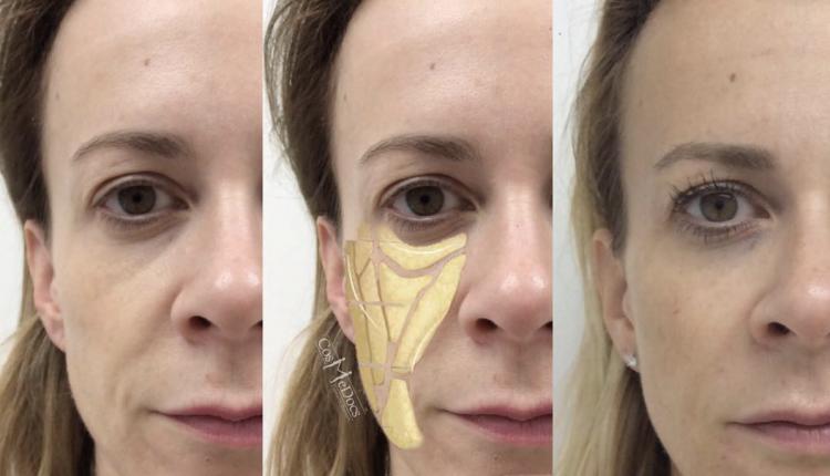 dermal-fillers-face-treatment