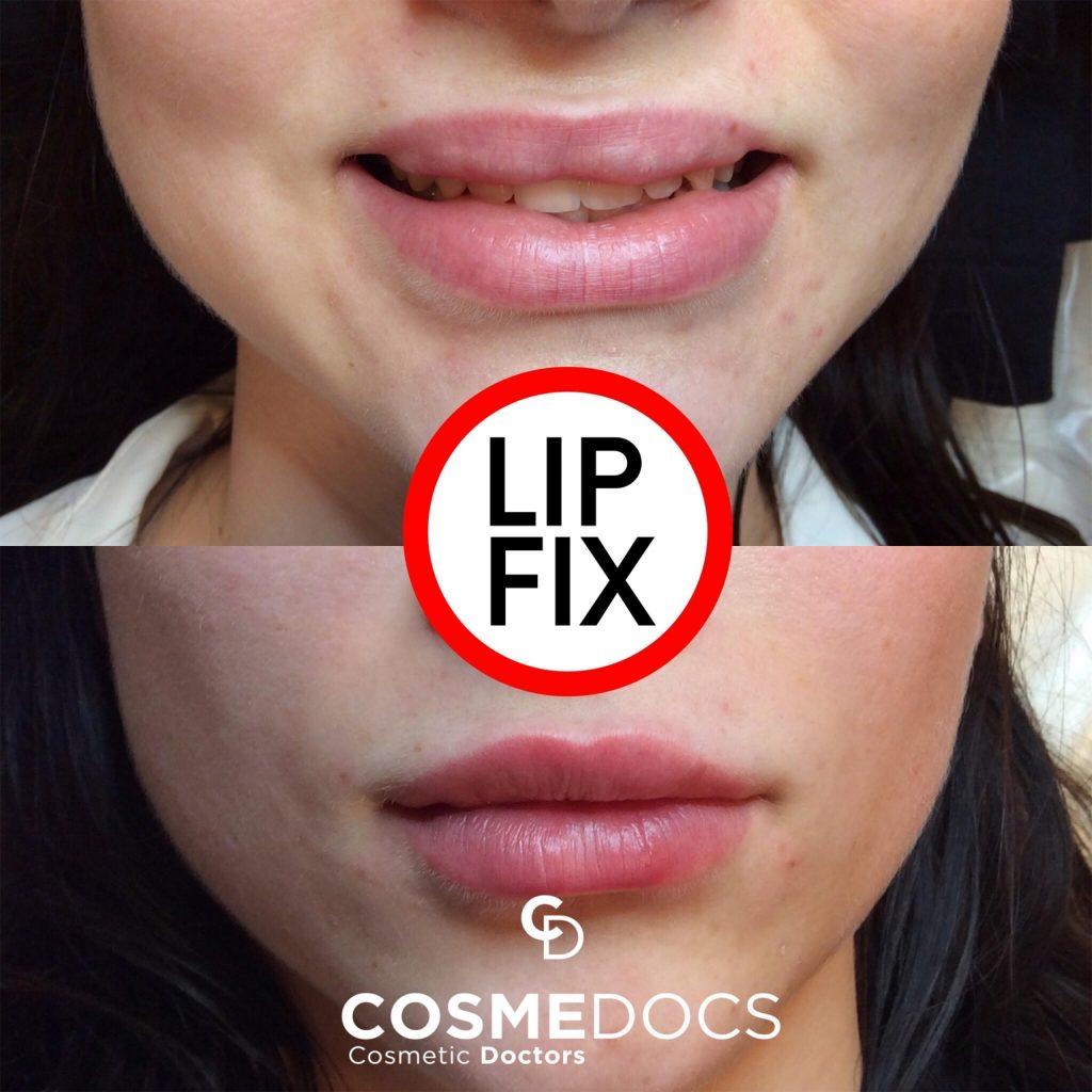 lip filler gone wrong