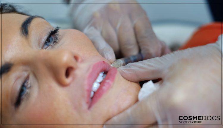 lip-filler-injection