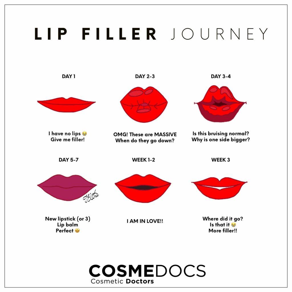 lip filler journey