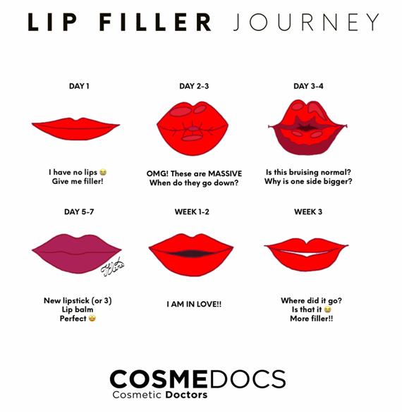 lip fillers journey illustration