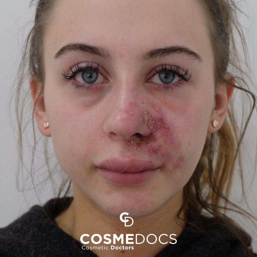 lip fillers side effects