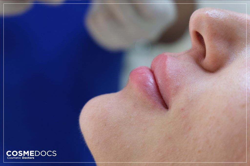 non surgical upper lip enhancement