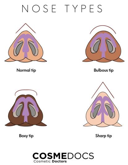 nose type illustration
