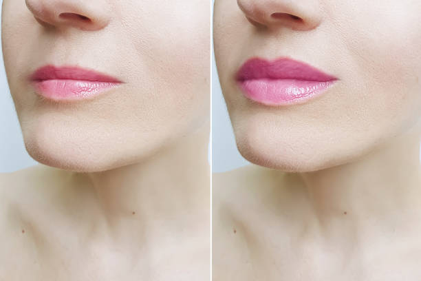 woman lips before and after augmentation