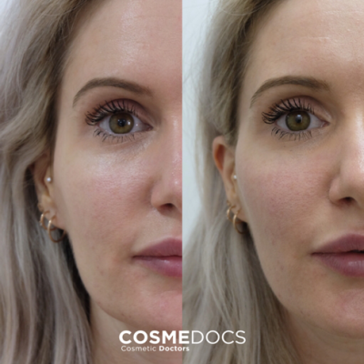 1ml cheek fillers before and after