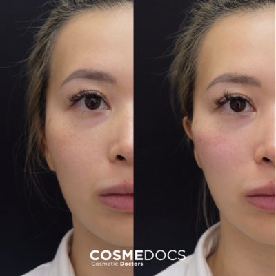 2ml cheek fillers before and after