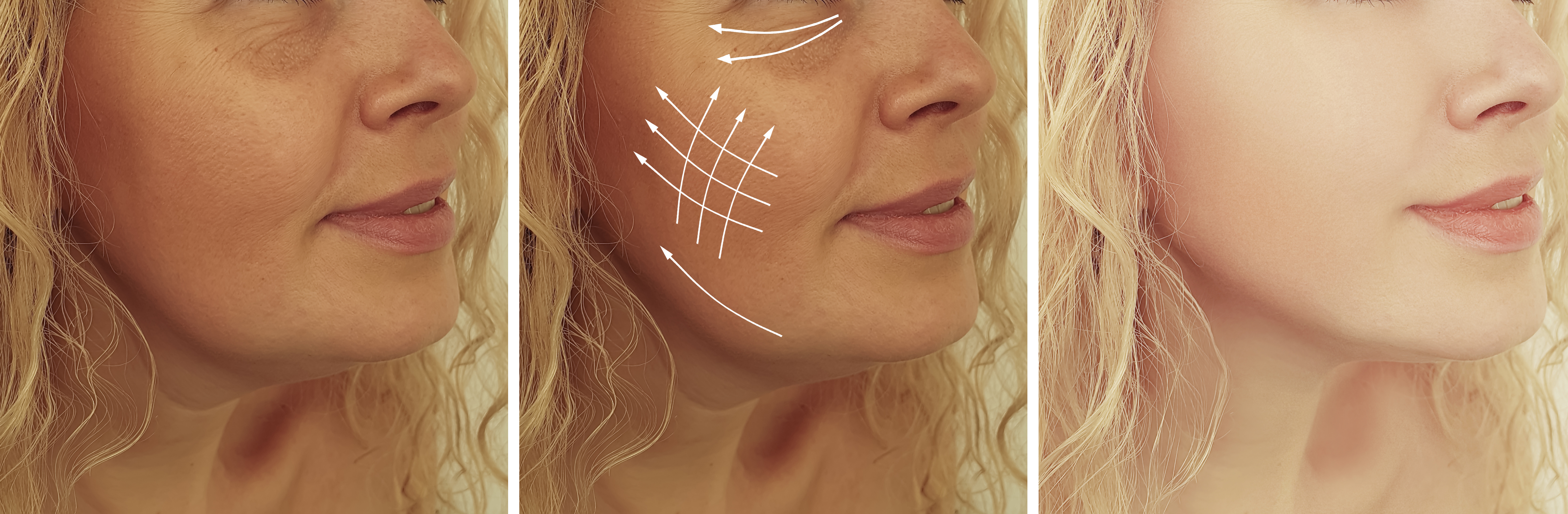 jowls formation affects pseudo double chin formation