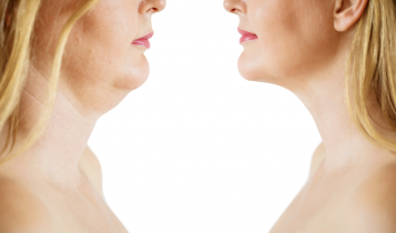 how to get rid of double chin and jowls