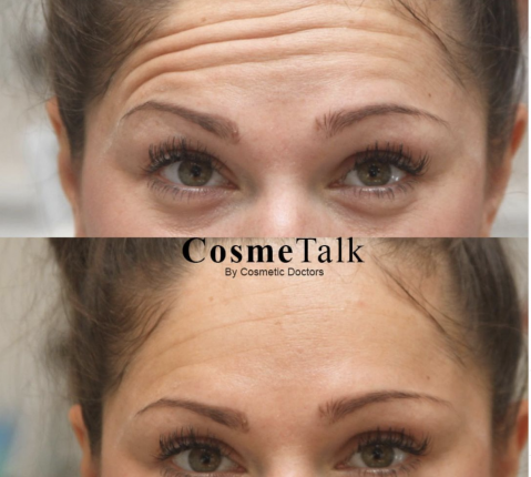 botox-forhead-lines-before-after