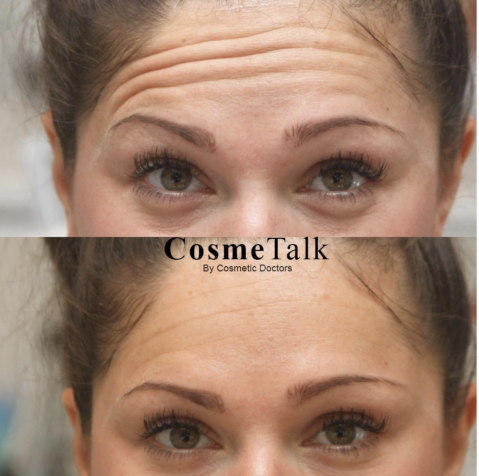 Botox Forhead Lines Before After