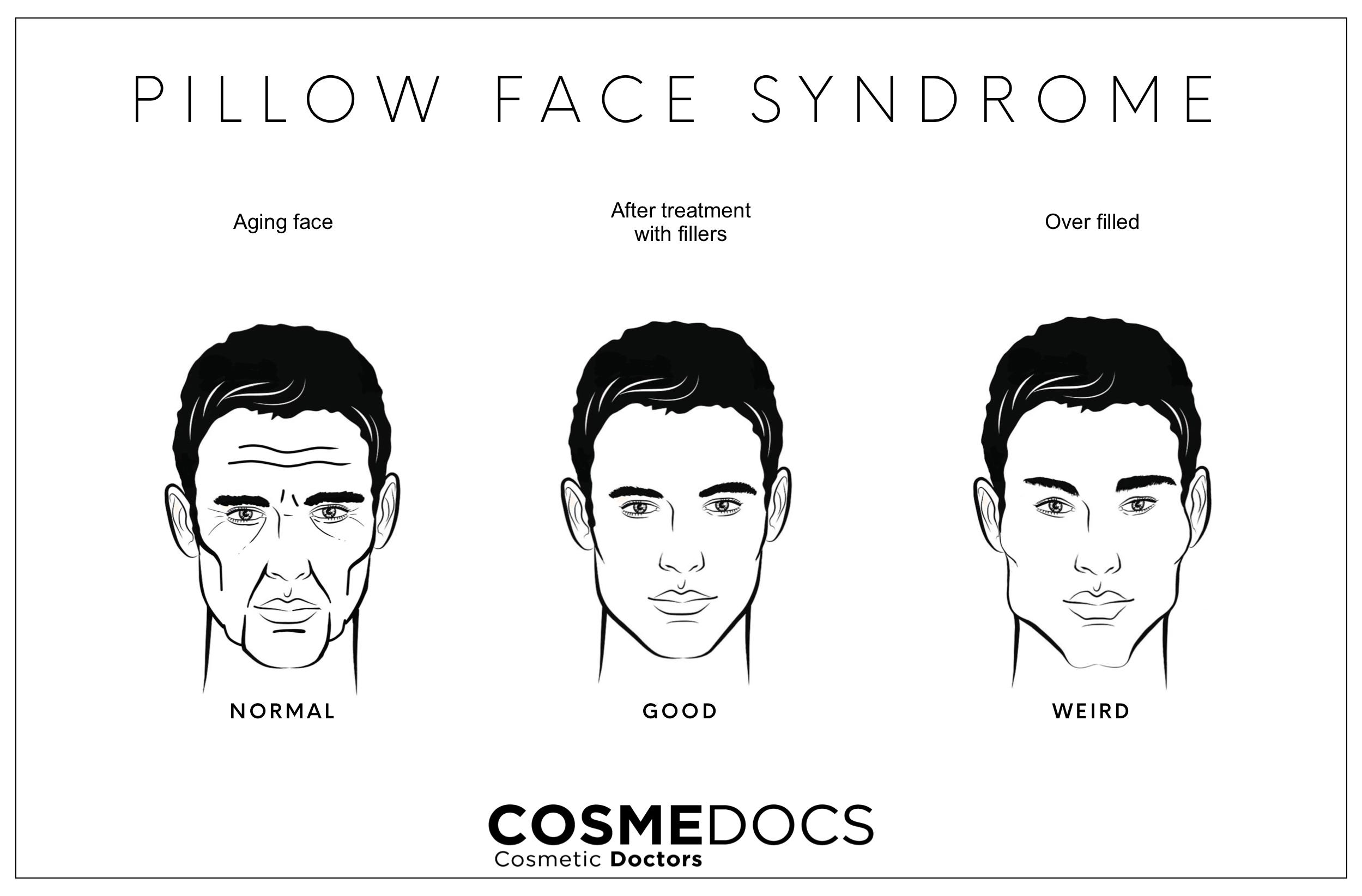 pillow face syndrome
