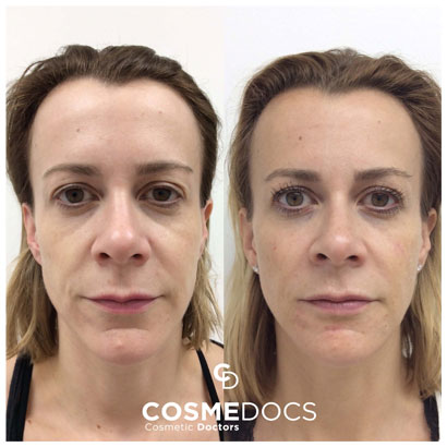 face fillers for younger look