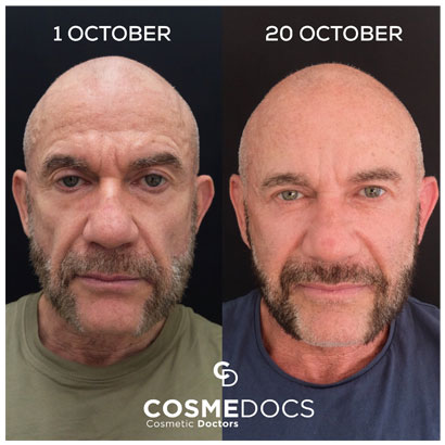 dermal filler or face filler for men before and after