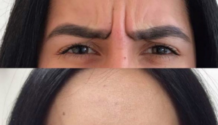 botox-frown-lines-before-after-image