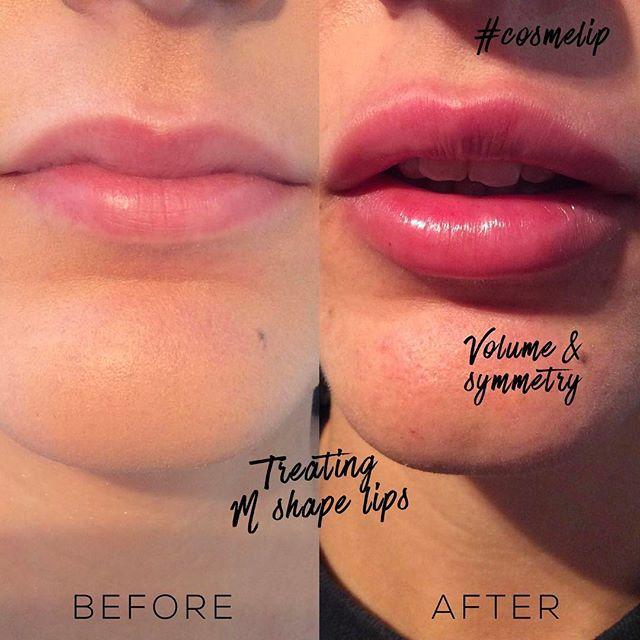 Lip enhancement treatment with dermal fillers