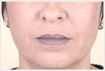 Nosolabial dermal Filler Treatment after